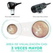 otoscopio macroview digital_area_visualizacion