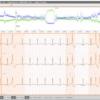 Cubeholter Cardioline